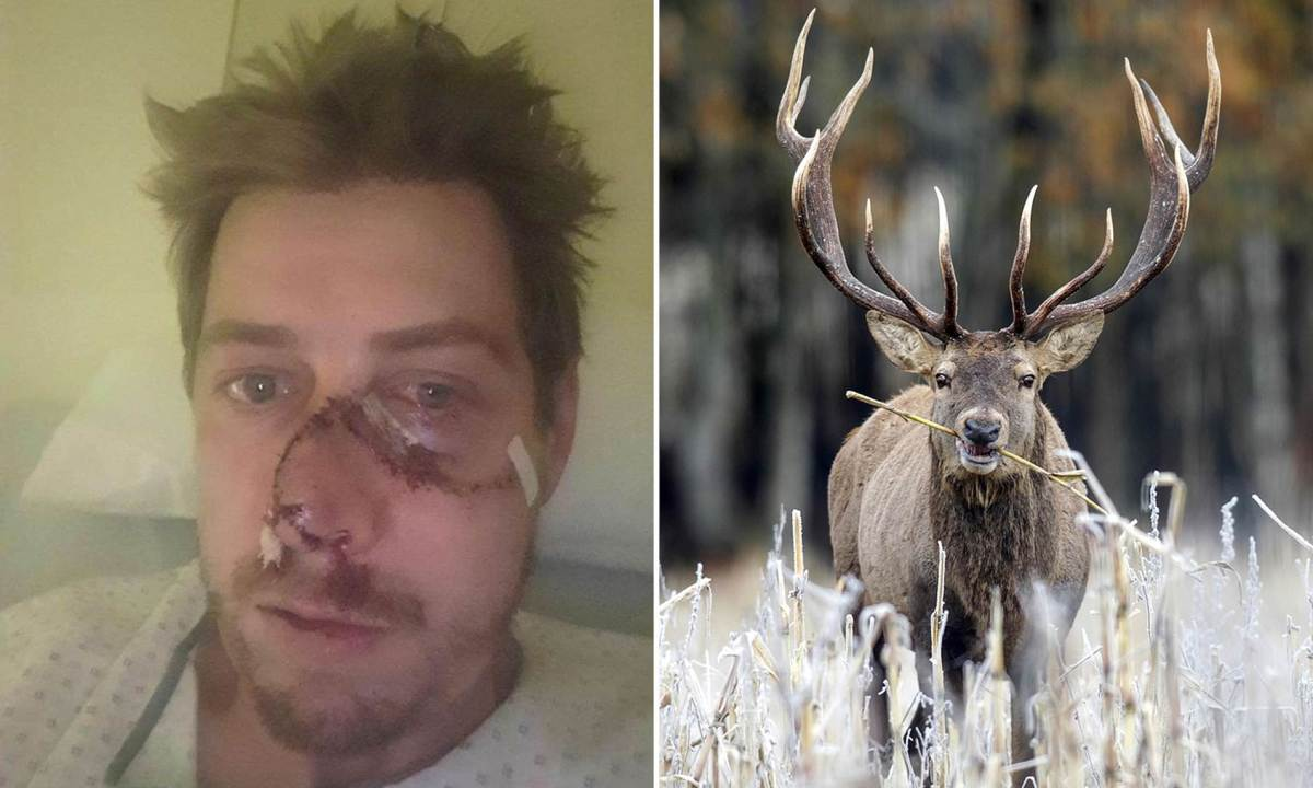 INSÓLITO: Ciervo le arranca la cara a cazador francés que trató dematarlo